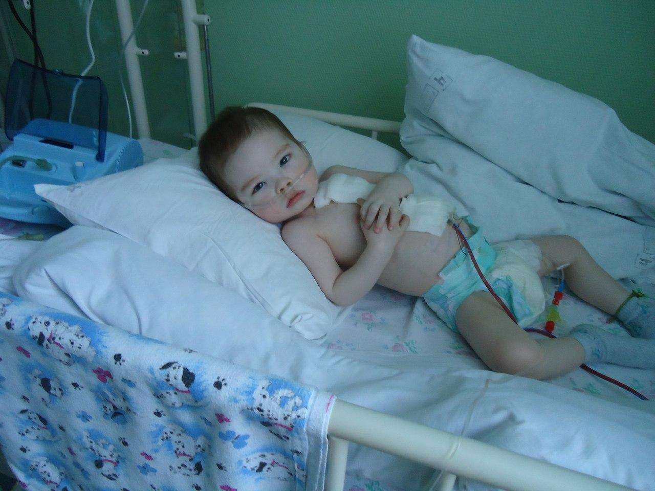 Фото больных детей после операции