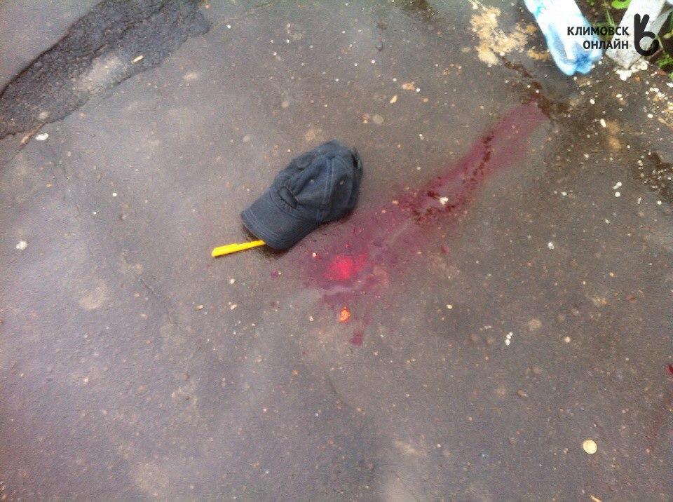 Безбилетник выстрелил вкассира-контролера ЦППК изтравматического пистолета